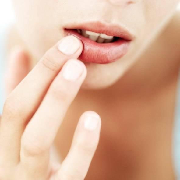 Сухость во рту, на языке и губах: причины и устранение болезни
