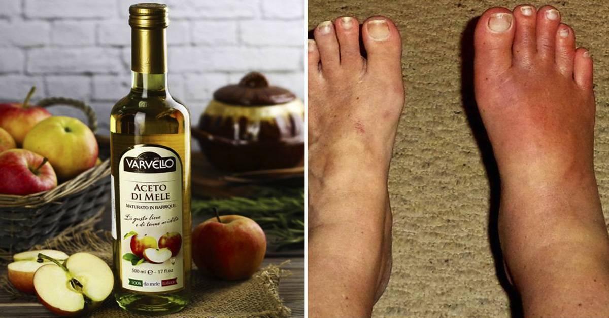 Виноград при подагре — можно ли есть, рецепты лечения
