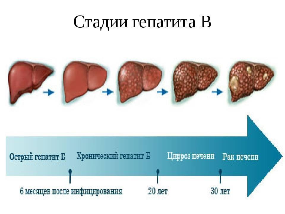 Чем опасна печеночная недостаточность, симптомы и лечение