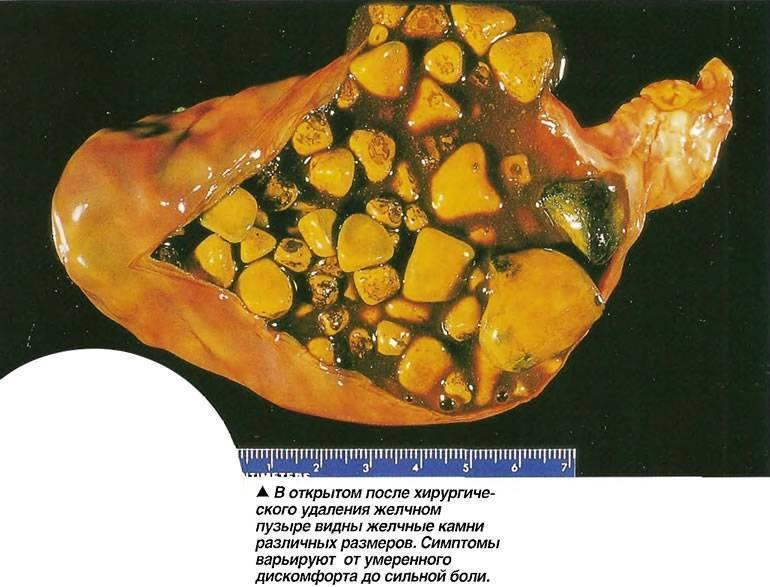 Диета при холецистите: врач назвала 5 правил питания при воспалении желчного пузыря | новости