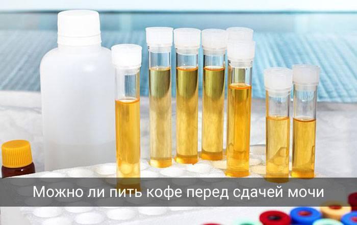 Можно ли пить алкоголь перед сдачей анализов