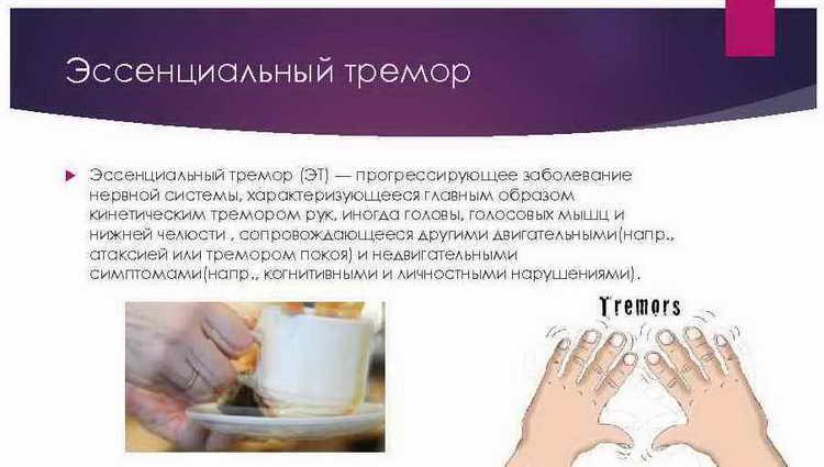 Похмелье: руки трясутся после алкоголя и что с этим делать