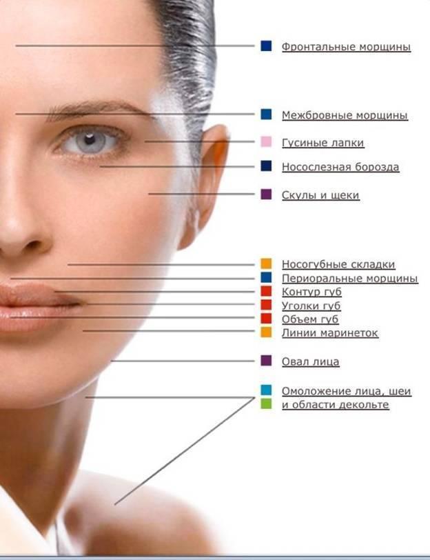 Филлеры: отзывы и эффект, филлеры гиалуроновой кислотой, фото до и после процедуры - 24сми