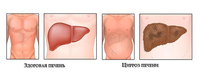 Цирроз печени у женщин: первые признаки, стадии и принципы лечения | здорова и красива