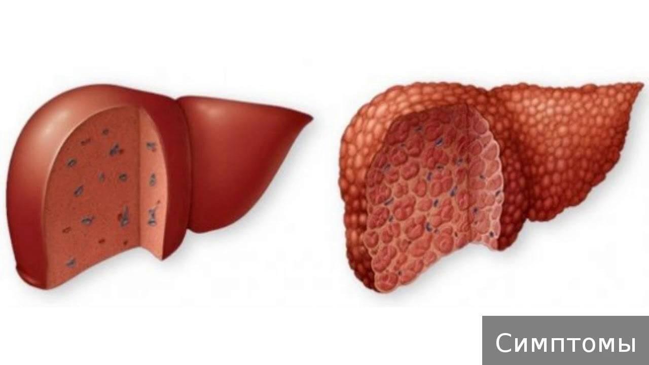 Цирроз печени: прогноз продолжительности жизни