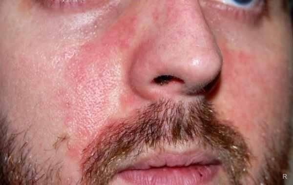 Пятна на лице после алкоголя