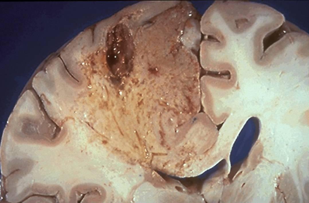 Отек мозга: что это такое, основные причины, варианты последствий при отсутствии лечения