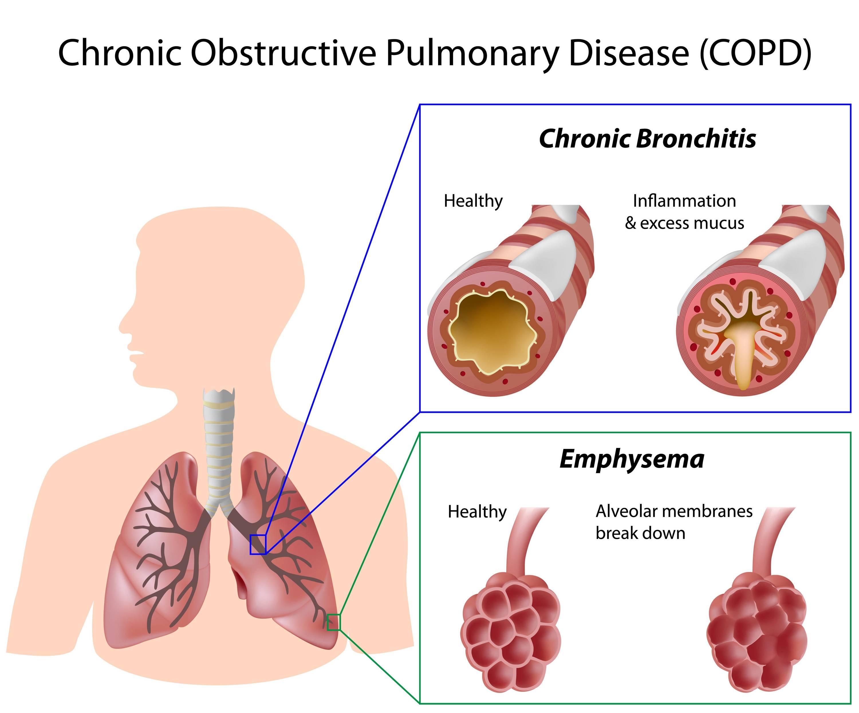 Попкорновая болезнь лёгких: симптомы, признаки, лечение