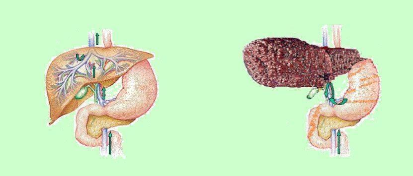 Портальная гипертензия при циррозе печени - наш онлайн врач
