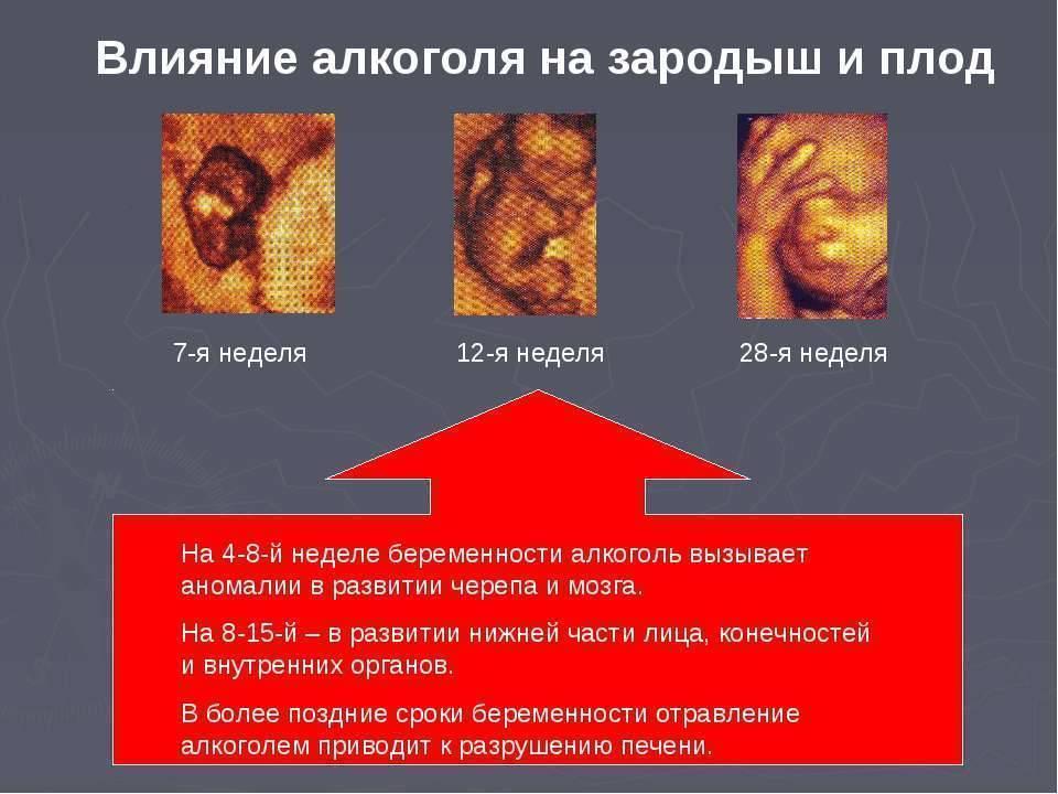 Курение и алкоголь во время беременности: как влияет на ранних сроках на ребенка и последствия на третьем триместре