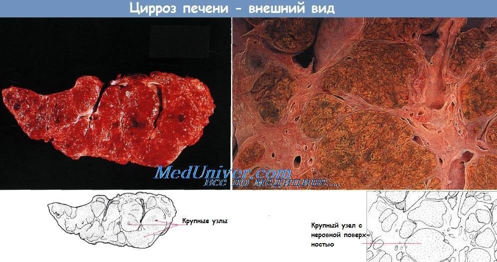 Мелкоузловой цирроз печени осложнения