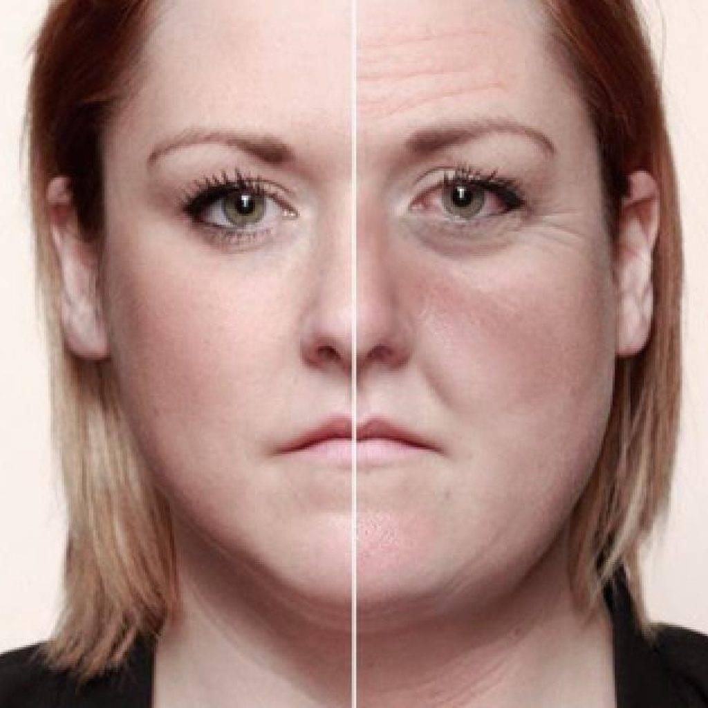 ️ лицо алкоголика. как алкоголизм отражается на внешности - алкоздрав - центр лечения алкоголизма