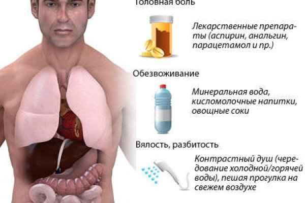 Головная боль при похмелье: лечение
