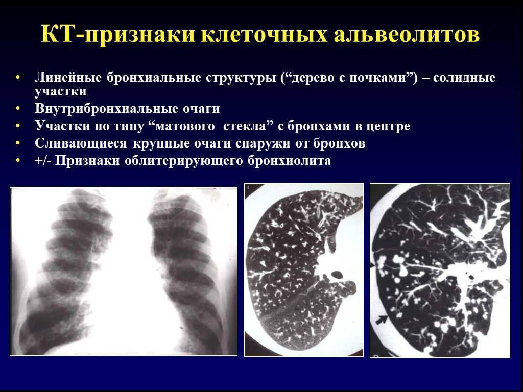 Симптомы и лечение облитерирующего бронхиолита