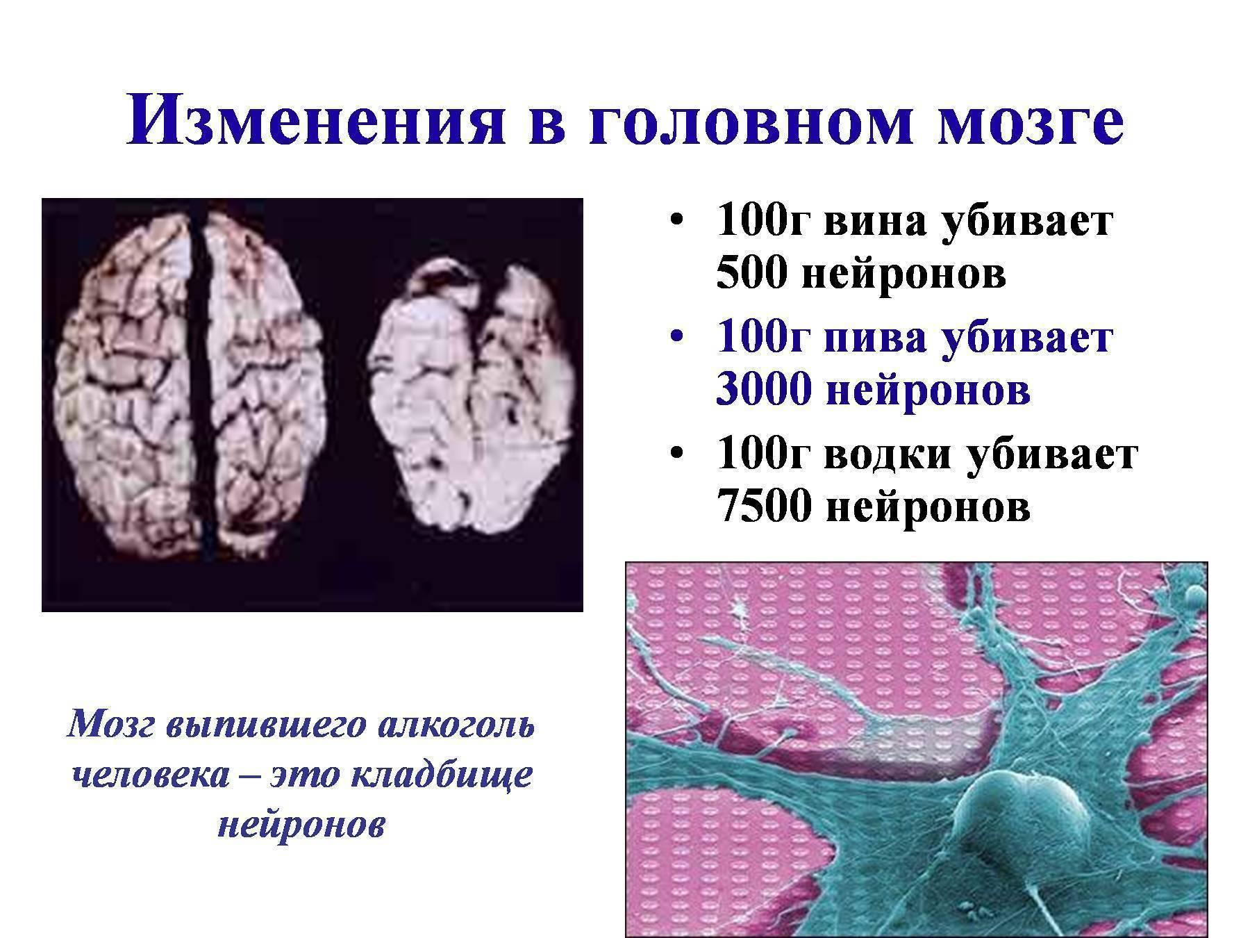Влияние алкоголя на мозг: вред и неприятные последствия