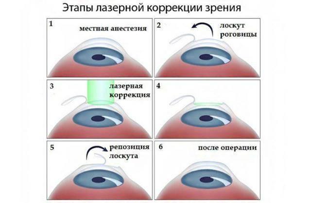 Как проводится лазерная коррекция зрения по разным методикам и сколько стоит процедура?