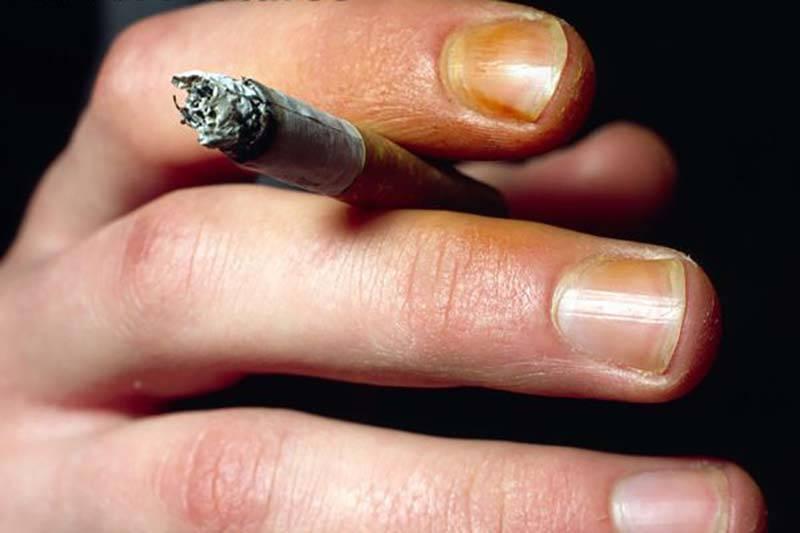 Как и чем отбелить ногти: отбеливающий карандаш, лак, ванночки и маски?