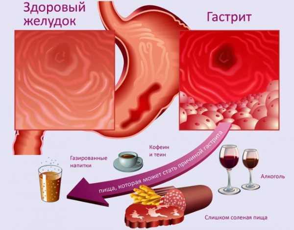 Алкоголь при гастрите желудка с повышенной кислотностью
