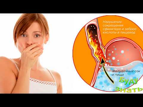 Изжога: причины возникновения, симптомы и лечение