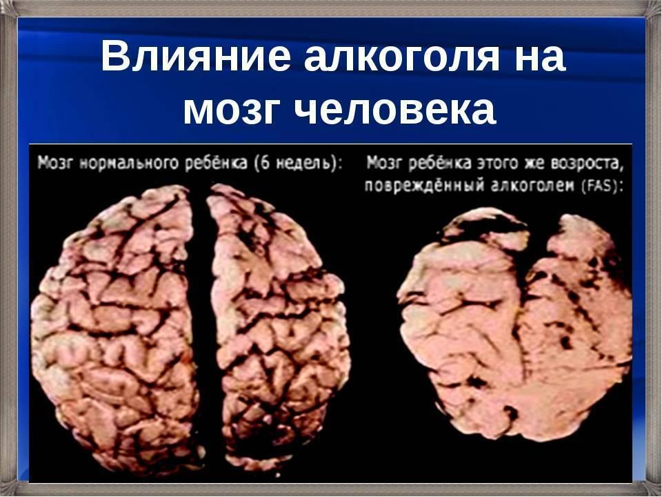 Мозг алкоголика и здорового человека: восстанавливающие лекарства