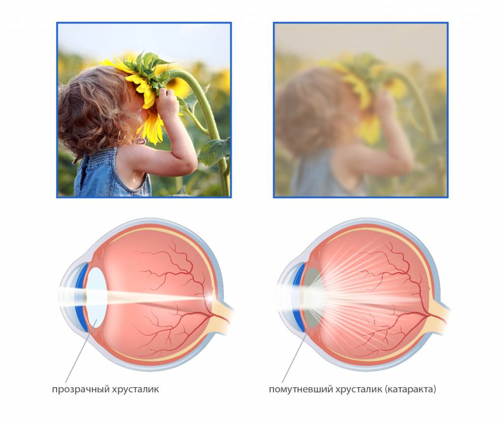 Катаракта — причины, симптомы, лечение и профилактика. лечение катаракты народными средствами