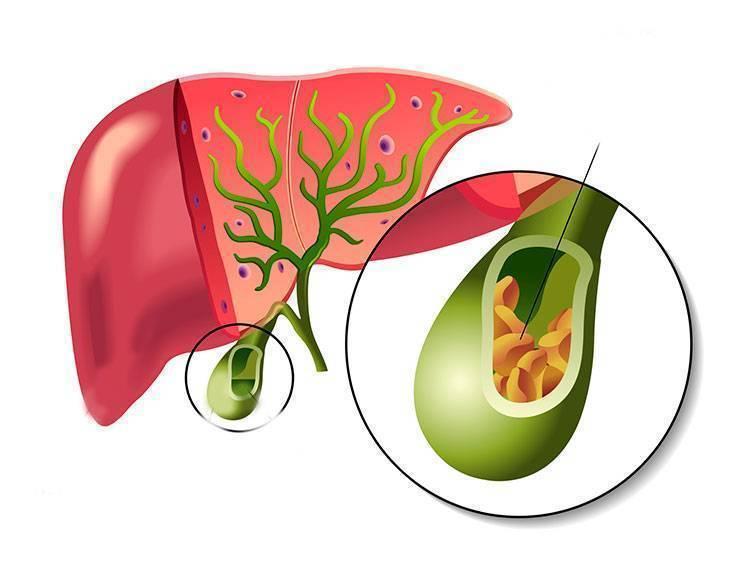 Причины появления поноса с желчью и его лечение