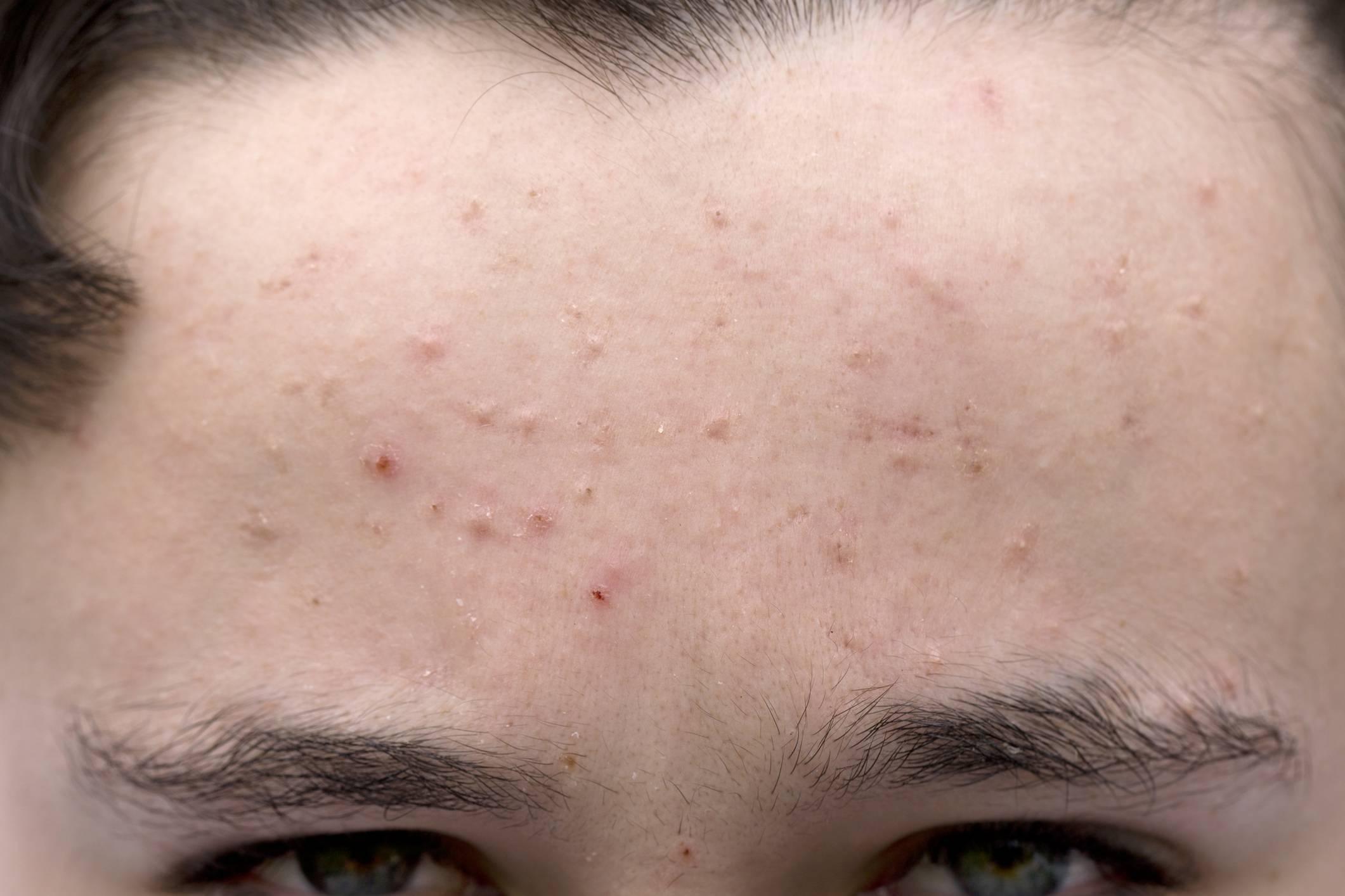 Прыщи от алкоголя на лице и теле: виды и причины появления аномалии