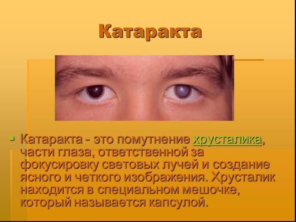 Катаракта – что это? причины, симптомы, лечение и профилактика заболевания