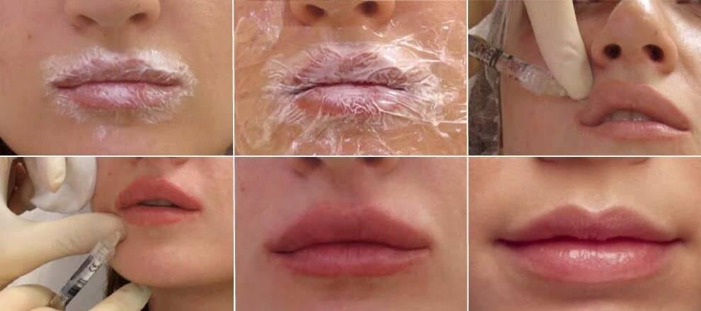 Красить губы после увеличения гиалуроной кислотой: когда можно наносить косметику и делать татуаж