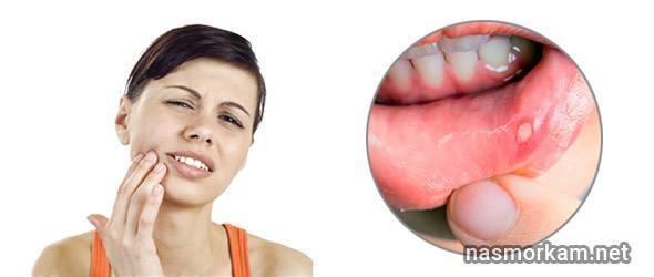 Ожог горла: симптомы, первая помощь, лечение, виды