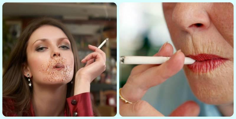 Щитовидка и курение. в чем опасность?