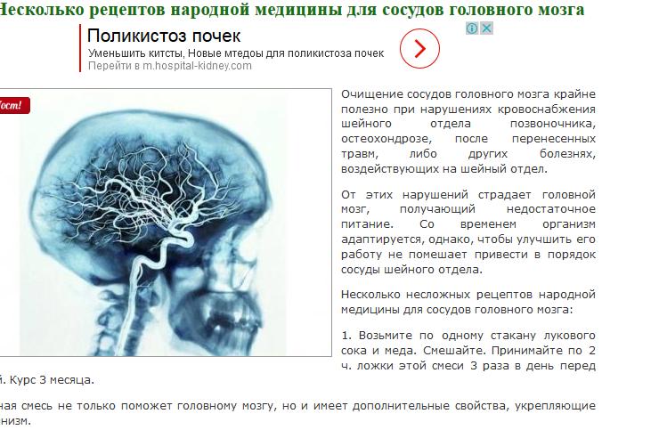 Лечение атеросклероза сосудов мозга: народными средствами