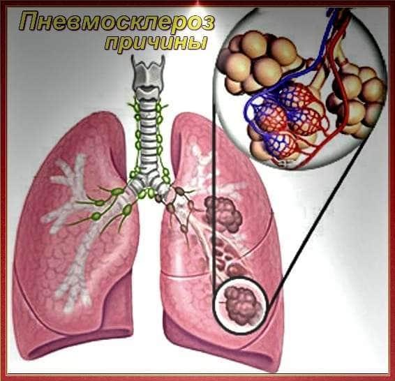 Попкорновая болезнь легких: причины и лечение