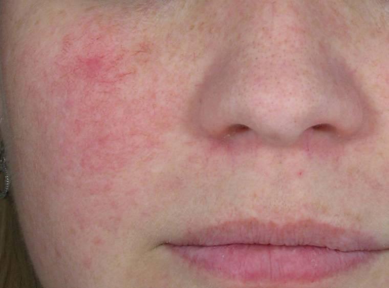 Красные пятна на лице после алкоголя: причины появления и методы лечения