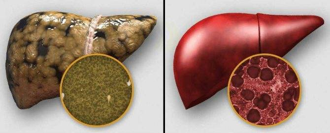 Цирроз печени — это рак или нет?
