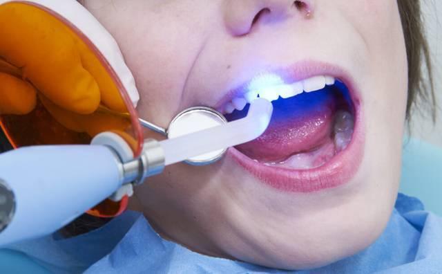 Сколько нельзя пить и есть после пломбы — зубы