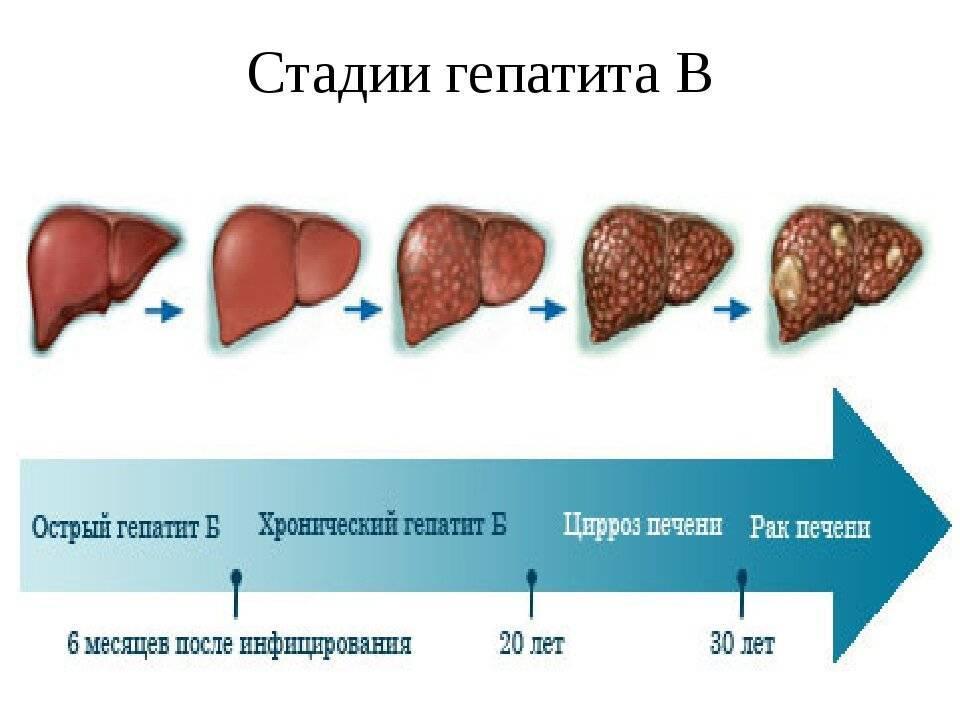 Типы поражения печени: симптомы, признаки, причины и помощь при восстановлении функций печени