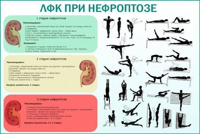 Упражнения для лечебной физкультуры при пиелонефрите