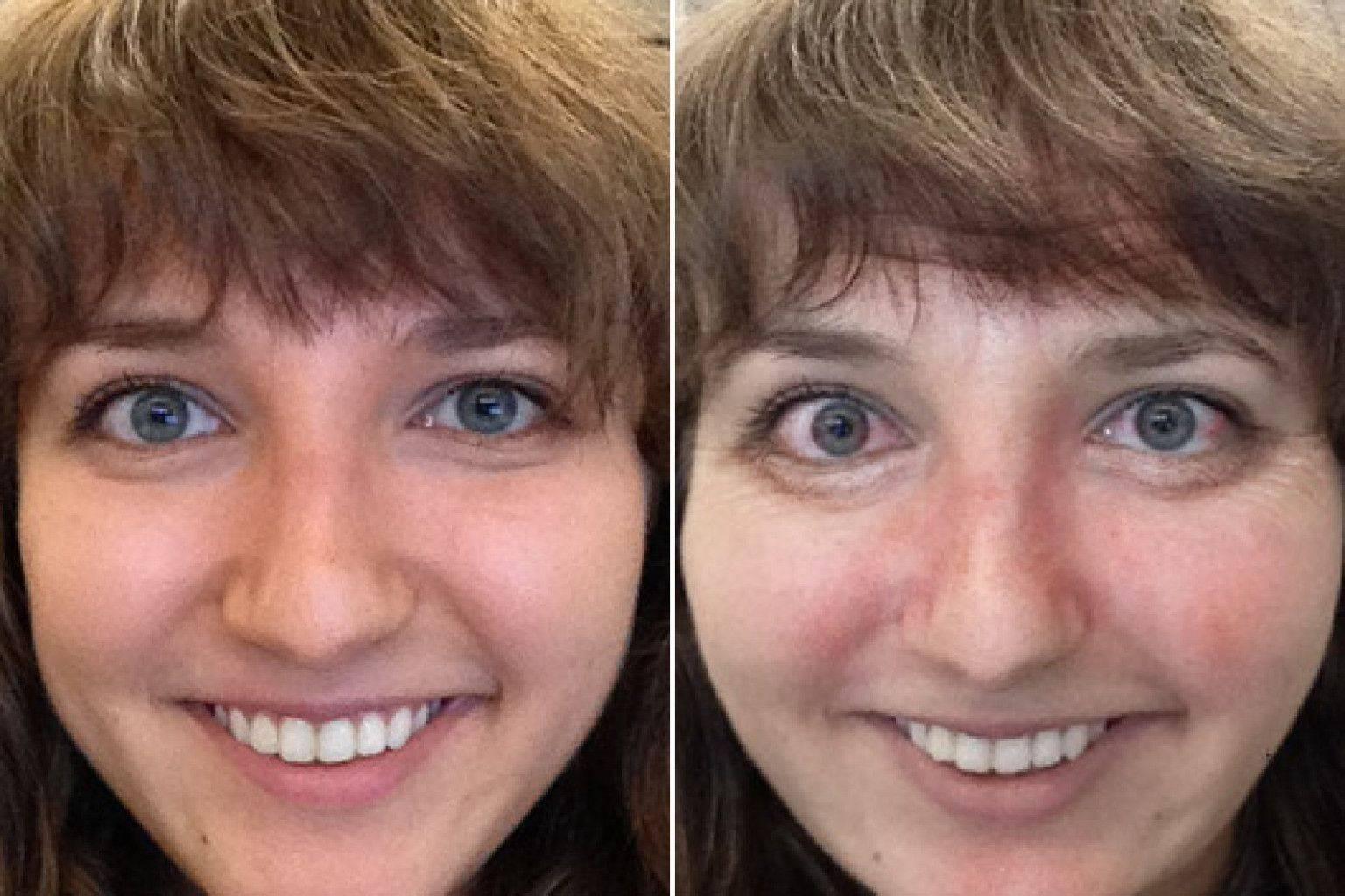 Лицо алкоголика до и после: влияние алкоголя на внешность