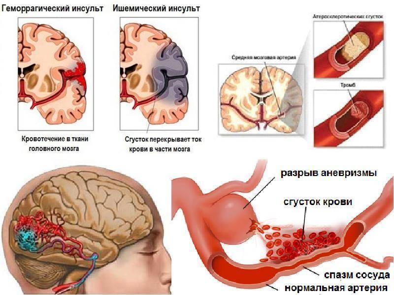 Инсульт после запоя - причины, лечение и возможные последствия