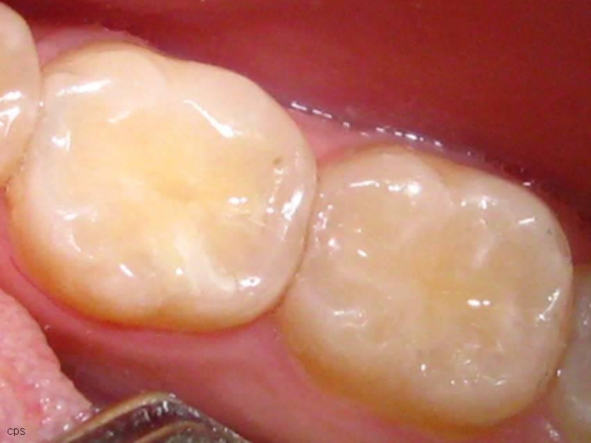 Пломбирование зубов: сколько нельзя есть после процедуры