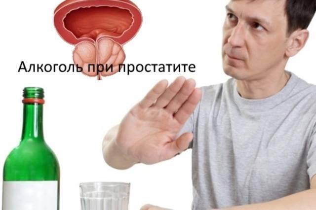 Алкоголь при простатите: влияние спиртного на предстательную железу