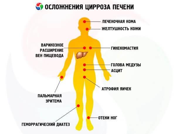 Виды цирроза печени: причины и симптомы