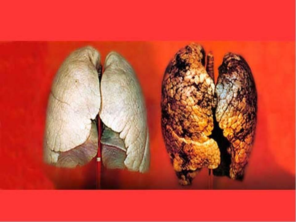 Последствия курения сигарет: все риски (фото курильщиков с разным стажем). что происходит с организмом, когда бросаешь курить? вся правда