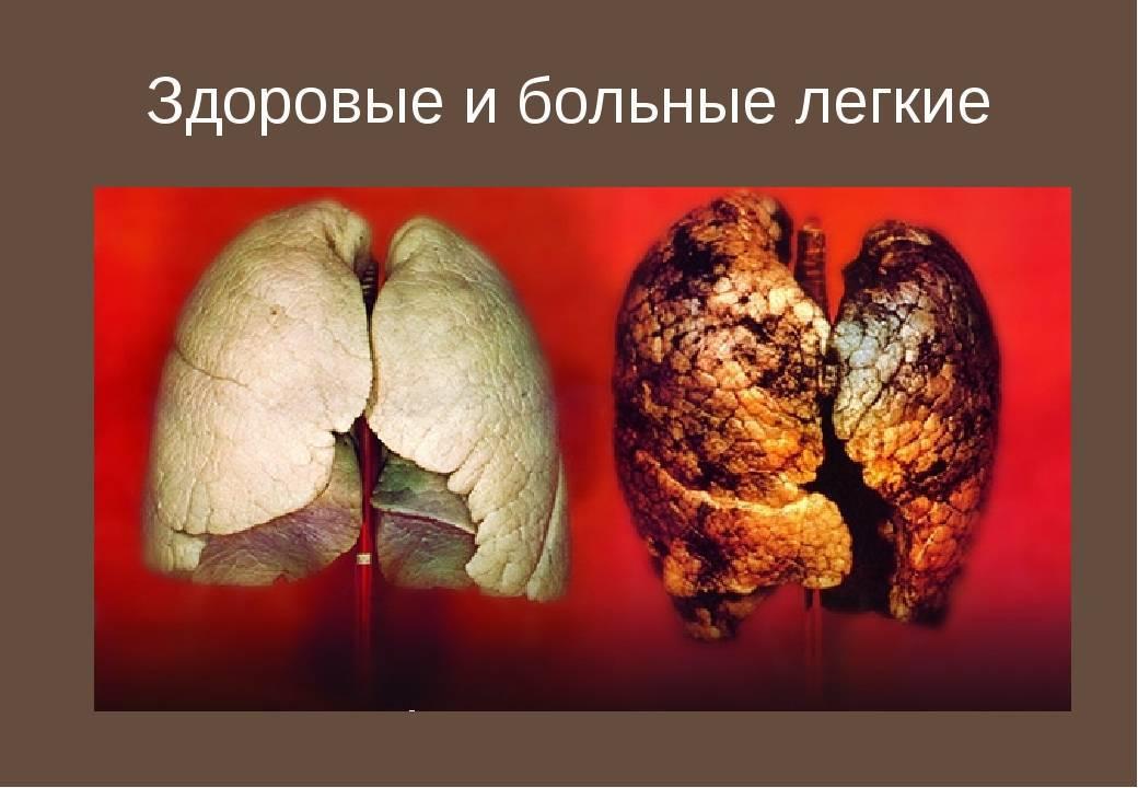 Последствия курения сигарет фото и видео о последствиях курения для организма