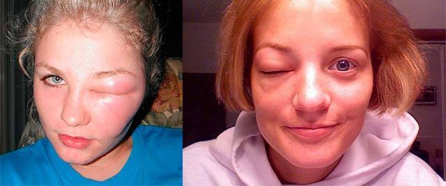 Почему может отекать лицо при аллергии и как снять отек?