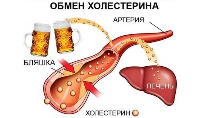 Пиво и холестерин: как влияет на организм? Плюсы и минусы