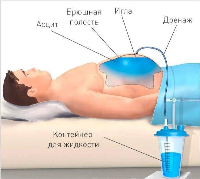 Асцит брюшной полости: фото, симптомы и лечение асцита