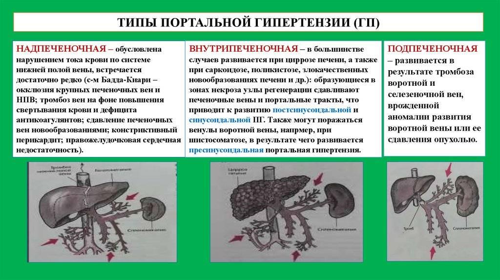 Портальная гипертензия при циррозе печени 3 степени: симптомы и лечение - правильный мед препарат