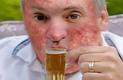Прыщи от алкоголя: причины появления и методы лечения
